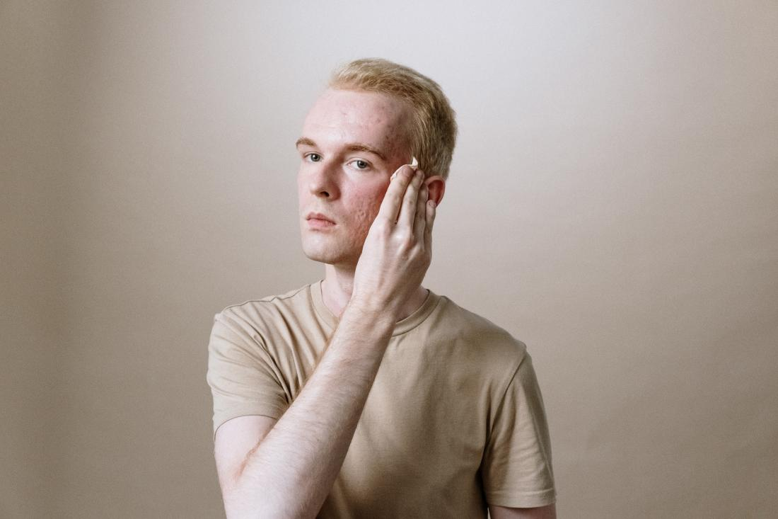 лечение акне. фото cottonbro